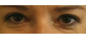 Manhattan BLEPHAROPLASTY after 2